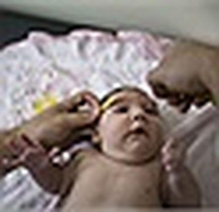 Thai phu nhiem virus Zika duoc cap phat thuoc pha thai mien phi - Anh 5