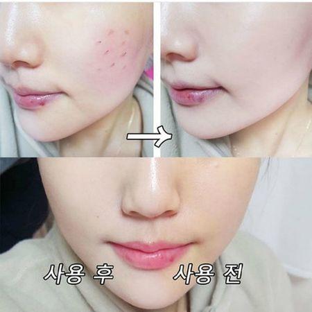 Nakeup Face - phan nuoc che khuyet diem hot khong kem April Skin - Anh 3