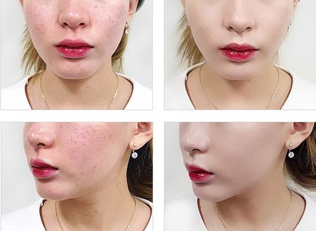 Nakeup Face - phan nuoc che khuyet diem hot khong kem April Skin - Anh 8