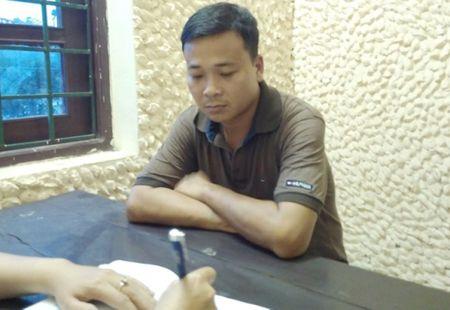 Nu giao vien bi chong cu hanh hung gay thuong tich - Anh 1