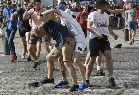 CDV Anh va Nga hon chien khien Marseille chim trong bao loan - Anh 10