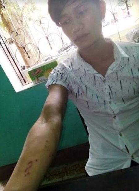 Quang Binh: Loi dung doan duong toi hiep dam be gai 15 tuoi - Anh 1