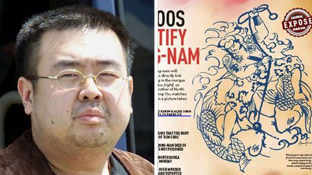 Malaysia nhan dang ong Kim Jong-nam bang not ruoi, hinh xam - Anh 1