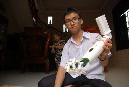 Nam sinh 'canh tay robot' nhan hoc bong 290 trieu dong - Anh 2