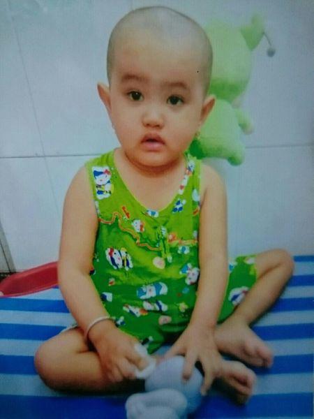 Cam thuong be gai 3 tuoi mac benh ung thu mau hiem gap - Anh 1