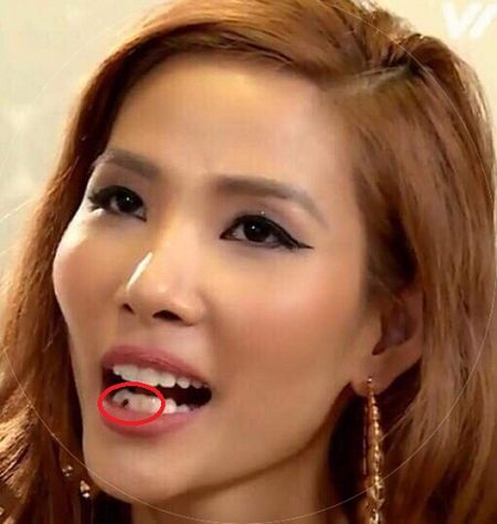 Hoang Thuy an che quen xia rang gay 'sot' duoc MC Phan Anh ung ho? - Anh 2