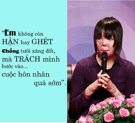 """Co gai bi chong tam xang dot: """"Khong trach chong chi trach minh buoc vao hon nhan qua som"""" - Anh 1"""