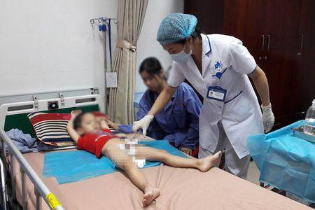 Hang chuc be trai bi sui mao ga o Hung Yen: Tiet lo 'dong troi' cua phu huynh - Anh 1