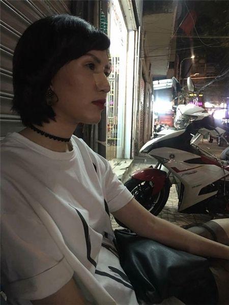 Ban to chuc bac bo chuyen Hong Xuan bi Nguyen Hop danh gay mui - Anh 1