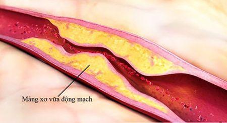 Cholesterol cao anh huong den suc khoe nhu the nao? - Anh 2