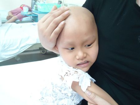 Xot thuong be gai 4 tuoi mac can benh ung thu phan mem - Anh 2