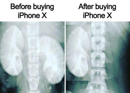 Loat anh che khien cac fan cua iPhone X phai chot da - Anh 1