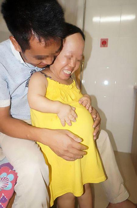 Nguoi phu nu cao 90cm bat chap tinh mang de sinh con - Anh 2