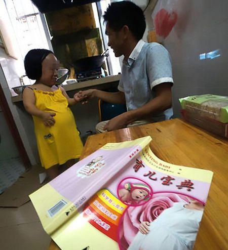 Nguoi phu nu cao 90cm bat chap tinh mang de sinh con - Anh 3