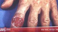 Có thể chữa khỏi bệnh giang mai?