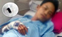 Súng trên tay Phó trưởng công an xã nổ khiến 1 người bị thương