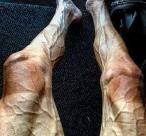 Đôi chân biến đổi khác thường sau khi đạp xe gần 3.000km dưới trời nắng