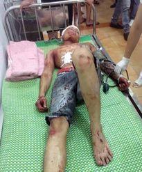 Hải Dương: Truy bắt nhóm côn đồ vào làng chém 3 người trọng thương