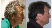 Tóc bạc 'bỗng dưng' đen trở lại sau khi uống thuốc điều trị… ung thư