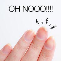 Vì sao móng tay lại dễ gãy?
