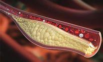 8 bài thuốc trị máu nhiễm mỡ đơn giản mà hiệu quả không ngờ