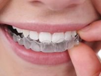 Trắc nghiệm: Có nên tẩy trắng răng?