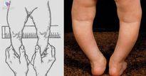 Bác sĩ chỉ cách phát hiện trẻ bị chân vòng kiềng ngay từ nhỏ