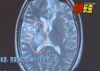 Toàn thân ê ẩm, cô gái sốc nặng khi biết có giun sống trong não mình suốt 4 năm