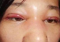 Những rủi ro khiến bạn phải cân nhắc thật kĩ khi quyết định bấm mí mắt