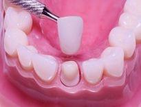 Coi chừng viêm lợi, vỡ răng khi bọc răng sứ