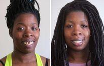 Cái kết bất ngờ cho người phụ nữ bị chế giễu vì hàm răng xấu xí
