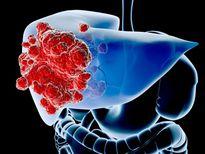 Phương pháp mới kéo dài sự sống cho bệnh nhân ung thư gan