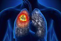 Những điều cần biết về xét nghiệm phát hiện ung thư phổi