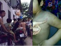 Vụ bé trai bị mẹ và dì bạo hành: Con ruột còn đánh thì sao làm được bảo mẫu?