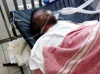 Đang điều tra người bị cháy bỏng toàn thân không rõ ai đưa tới bệnh viên