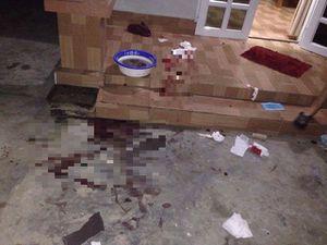 Hải Dương: Đang điều tra nhóm côn đồ chém 3 thanh niên nhập viện