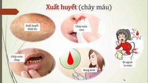 Video các điểm nóng bị sốt xuất huyết ở Hà Nội