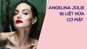 Angelina Jolie phải châm cứu vì liệt nửa cơ mặt