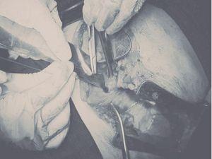 Cứu bệnh nhân bị đâm thấu tim, sốc mất máu nặng
