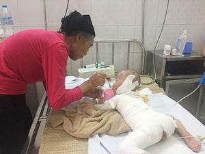 Bố mẹ mù lòa khiến con gái 16 tháng tuổi ngã vào chậu nước sôi bỏng nặng