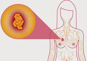 Cách tự khám ngực để phát hiện sớm ung thư vú