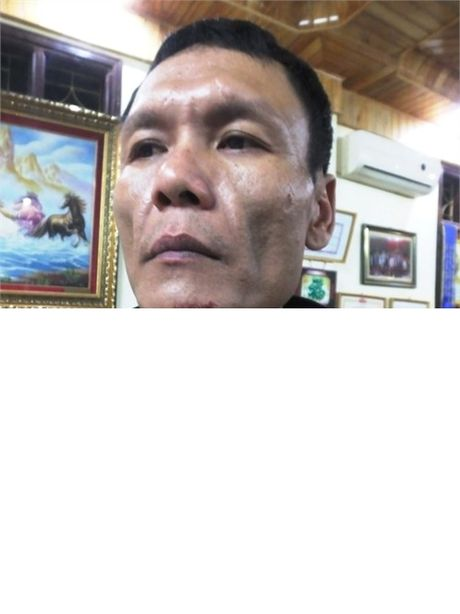 "Nghi van Cong an ""bao ke"" cho doanh nghiep? - Anh 2"