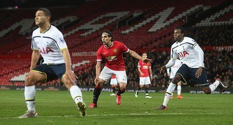 Falcao choi nhat nhoa khi khoac ao U21 M.U - Anh 7