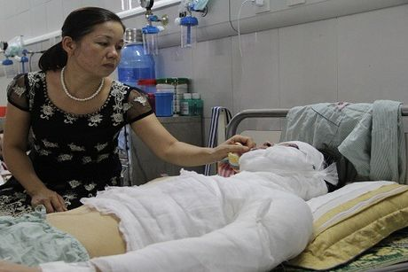 Ha Noi: Nam sinh truong Dai hoc San khau Dien anh bi tat axit luc nua dem - Anh 1