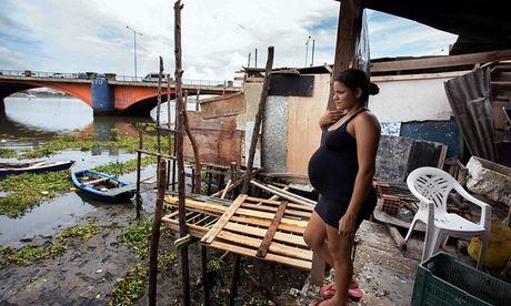 Brazil phat thuoc mien phi cho ba bau de phong virus Zika lay lan - Anh 1