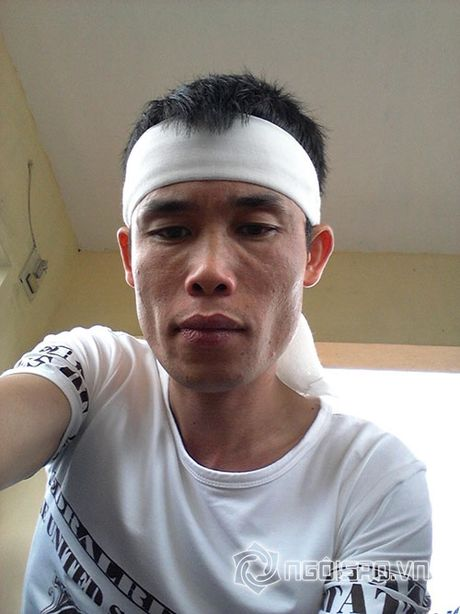 Cao Thai Son bi 'nem da' vi chup anh dang facebook trong dam tang - Anh 7