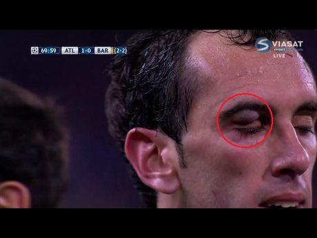 Trong tai la tham hoa cua tran Atletico vs Barcelona - Anh 1