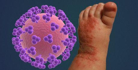 Tre nguy co nhiem virus Herpes va tu vong do nguoi lon hon - Anh 1