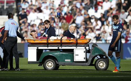 Payet lap sieu pham solo cuu West Ham khoi tran thua thu 6 - Anh 4