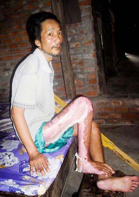 Nguoi dan ong thuong tat nuoi cha gia 95 tuoi va con dai - Anh 2